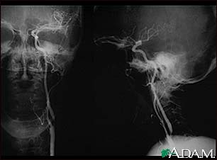 Carotid stenosis - X-ray of the left artery