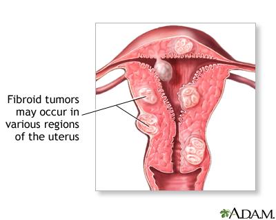 Infertility in women | Lima Memorial Health System