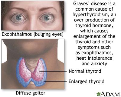 Hypothyroidism Lima Memorial Health System