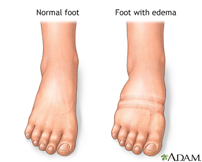 Foot Leg And Ankle Swelling Lima Memorial Health System