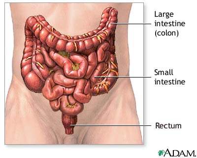 Large bowel resection | Lima Memorial Health System