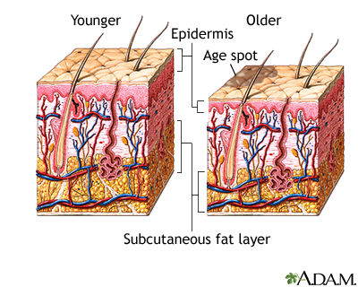 Changes in skin with age
