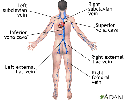 Deep Vein Thrombosis Lima Memorial Health System