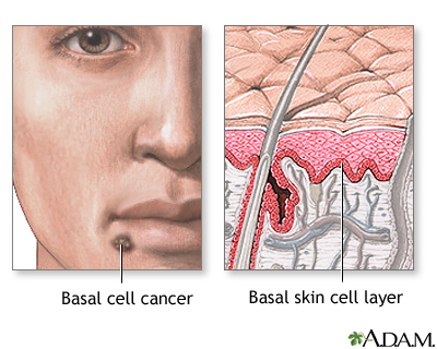 Basal cell cancer