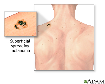 Melanoma And Other Skin Cancers Lima Memorial Health System