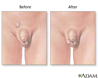 Before and after testicular repair