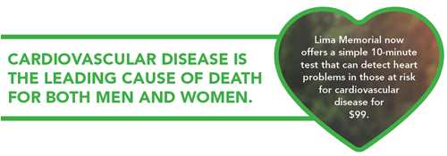 Text that reads: Cardiovascular disease is the leading cause of death for both men and women.